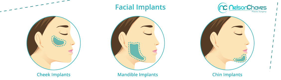 Facial Implants Types