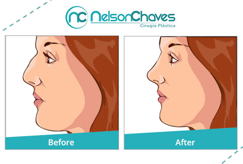 Before and After of Rhinoplasty